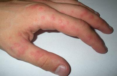 Причины образования пупырышек на руках