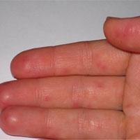 Каковы причины появления прыщиков на руках