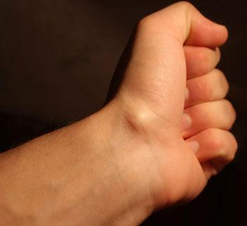 Шишка на руке под кожей на запястье снизу
