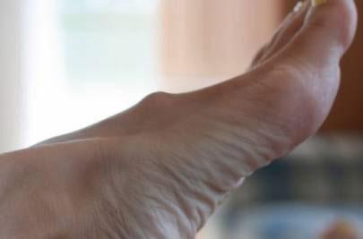 Шишечка на стопе под кожей