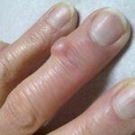 Почему образуются шишки на суставах рук
