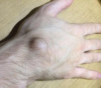 Откуда берется твердая шишка сверху запястья на руке