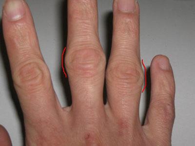 Причины появления шишек на пальцах рук