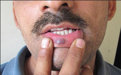 На внутренней стороне губы вскочила шишка гемангиома