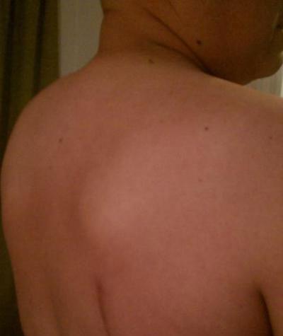 Возможные причины возникновения шишки на спине