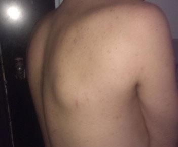 Шишка на спине около позвоночника