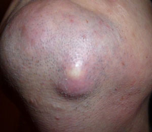 Появилась внутренняя шишка под подбородком и болит