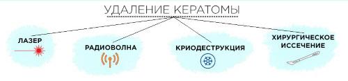 Методы удаления кератомы