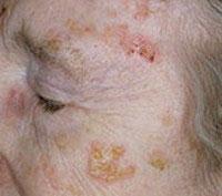 Солнечная кератома на коже у пожилого человека