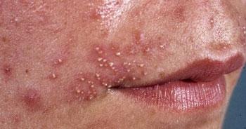 Причины появления пиодермии